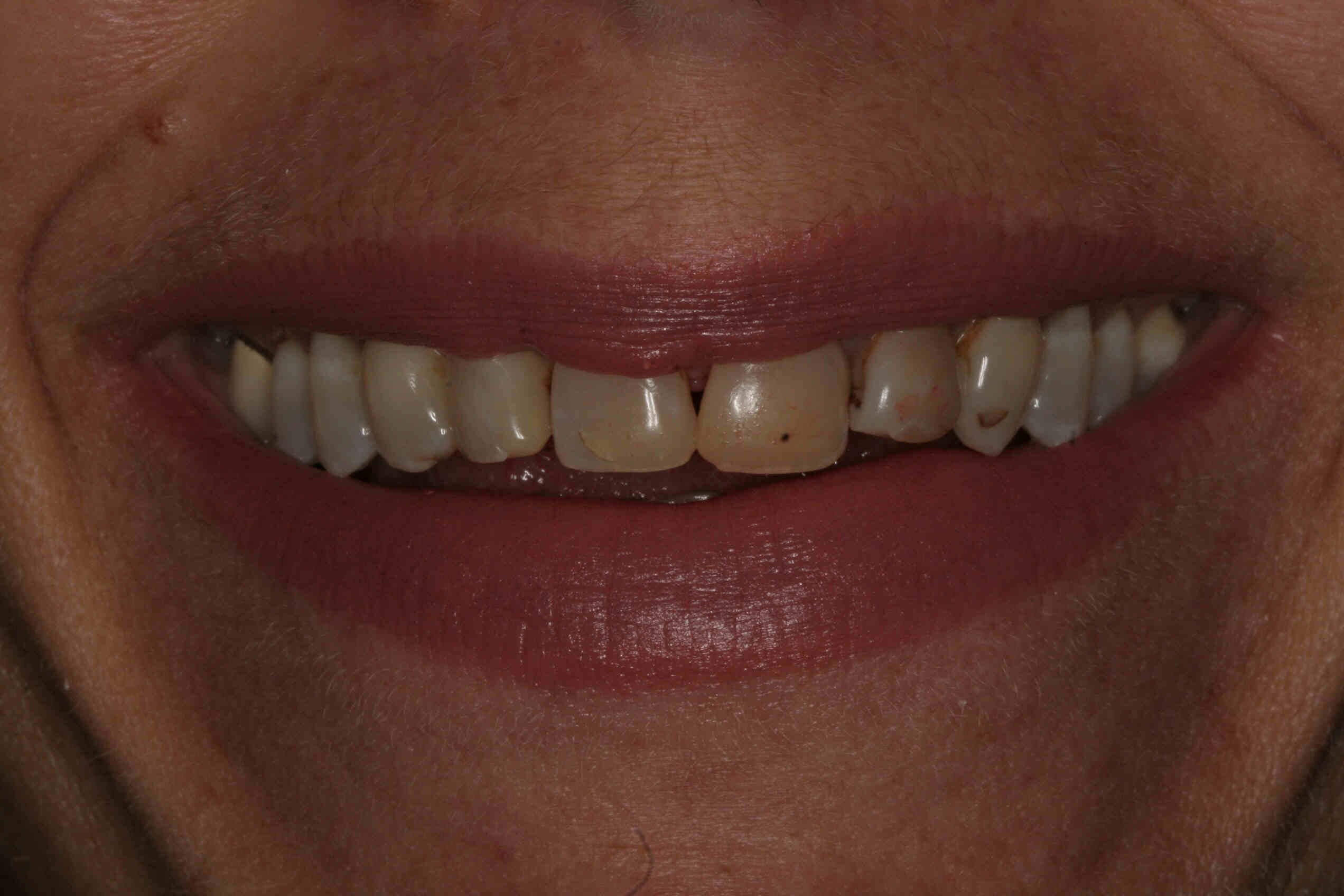 Houston Heights Dental Veneers Before