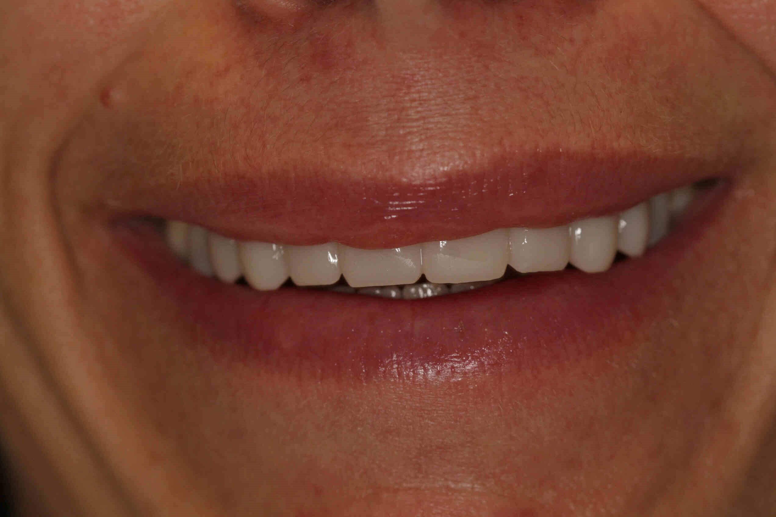 Houston Heights Dental Veneers After