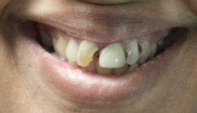 Houston Smile Makeover Before