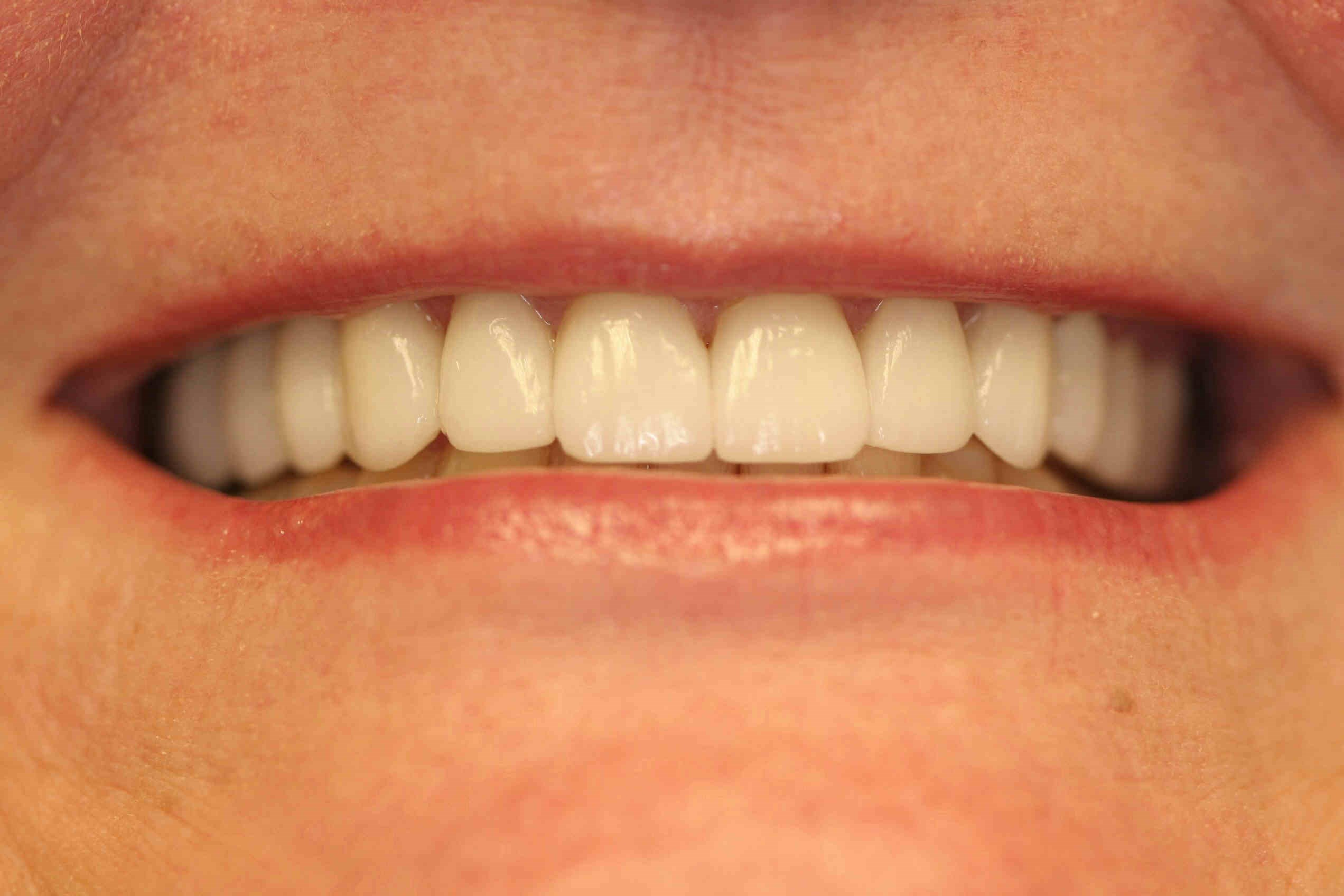 Houston Smile Makeover After