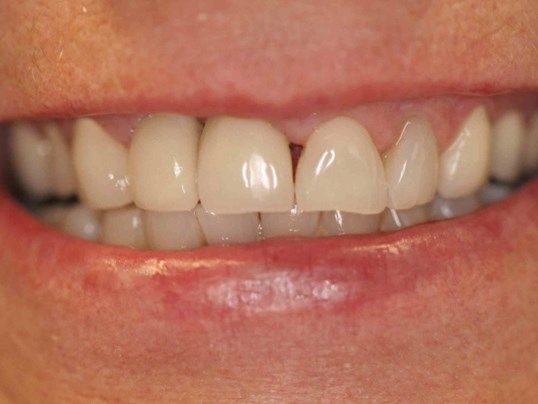 Smile Makeover in the Heights Before