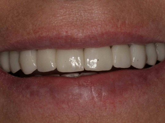 Smile Makeover in the Heights After