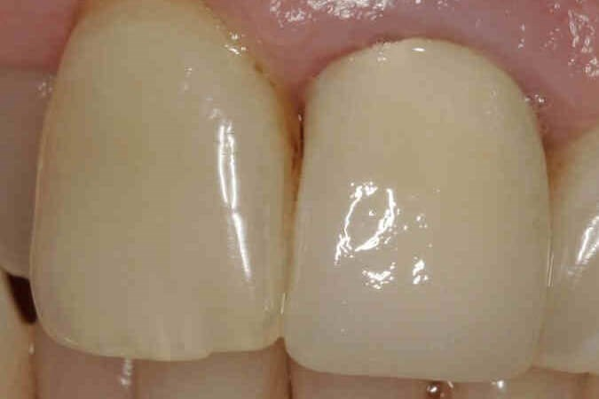 Root-canal treatment After